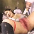 Hypertrophy Genitals Girl